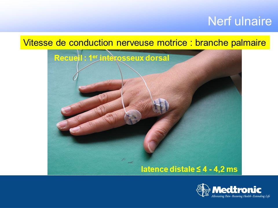Vitesse de conduction nerveuse motrice : branche palmaire latence distale 4 - 4,2 ms Recueil : 1 er interosseux dorsal Nerf ulnaire