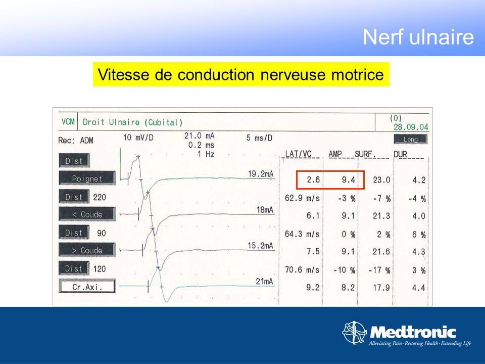 Vitesse de conduction nerveuse motrice Nerf ulnaire