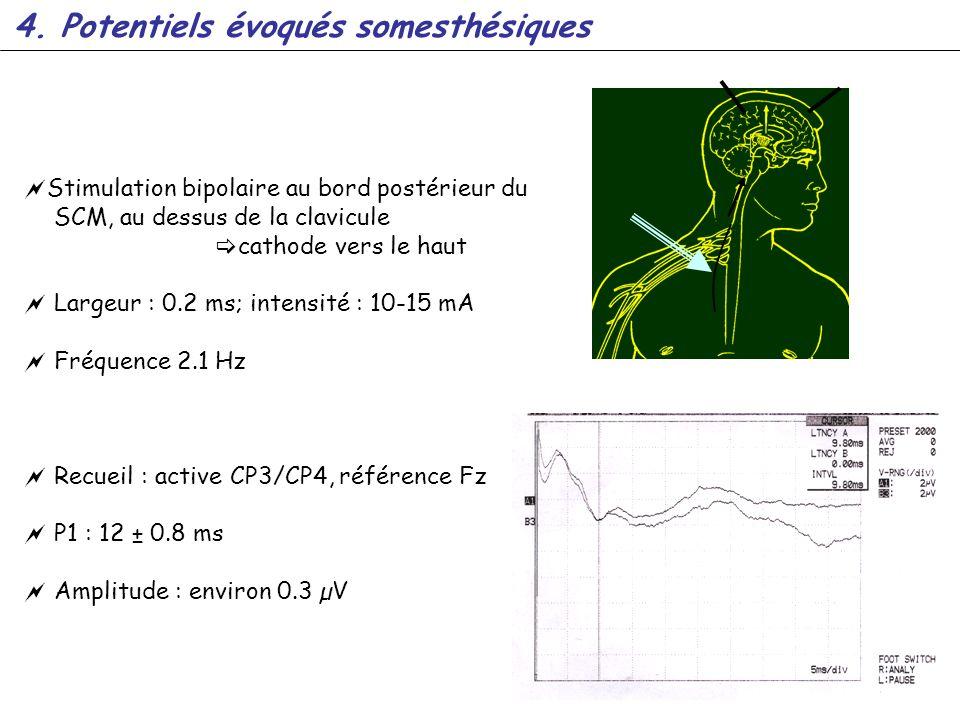 Stimulation bipolaire au bord postérieur du SCM, au dessus de la clavicule cathode vers le haut Largeur : 0.2 ms; intensité : 10-15 mA Fréquence 2.1 H