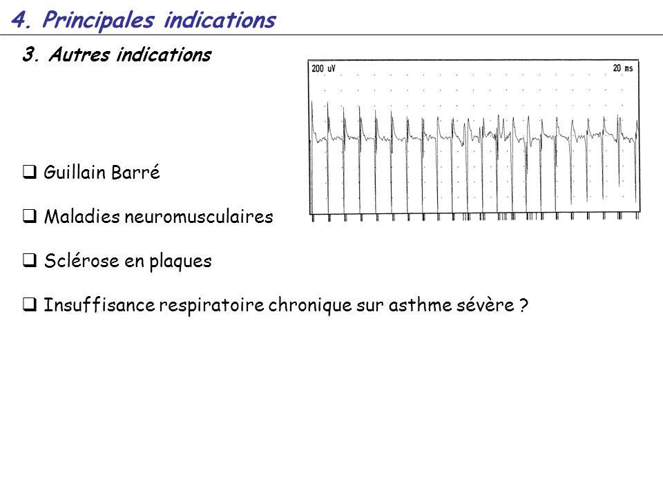 3. Autres indications Guillain Barré Maladies neuromusculaires Sclérose en plaques Insuffisance respiratoire chronique sur asthme sévère ? 4. Principa