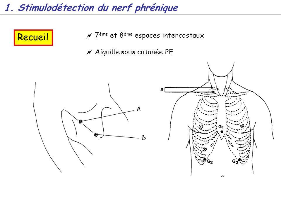 Recueil 1. Stimulodétection du nerf phrénique 7 ème et 8 ème espaces intercostaux Aiguille sous cutanée PE