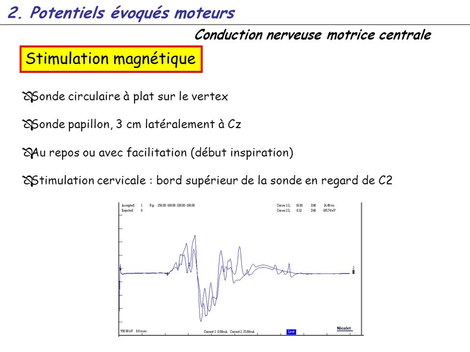Conduction nerveuse motrice centrale Sonde circulaire à plat sur le vertex Sonde papillon, 3 cm latéralement à Cz Au repos ou avec facilitation (début