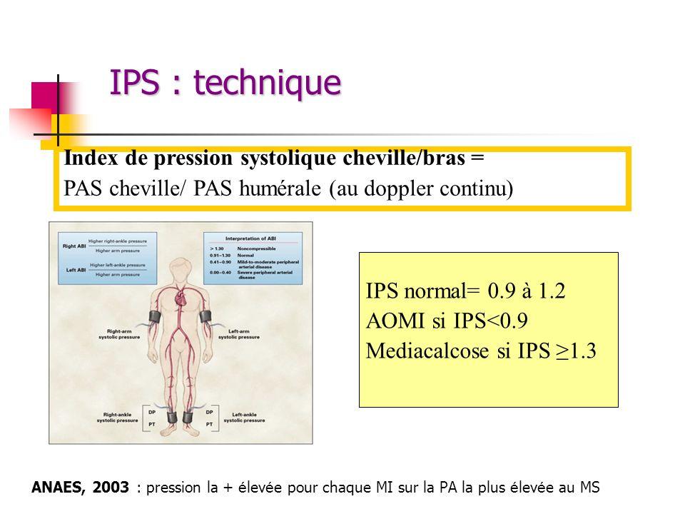 IPS : technique ANAES, 2003 : pression la + é lev é e pour chaque MI sur la PA la plus é lev é e au MS Index de pression systolique cheville/bras = PA
