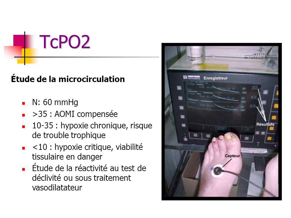 TcPO2 Étude de la microcirculation N: 60 mmHg >35 : AOMI compensée 10-35 : hypoxie chronique, risque de trouble trophique <10 : hypoxie critique, viab
