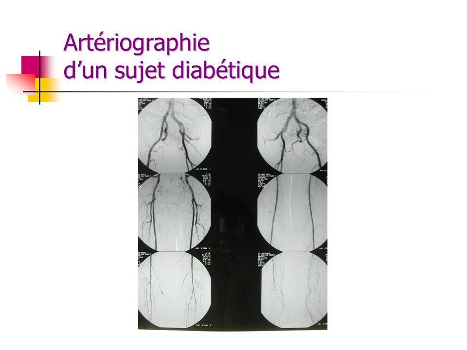 Artériographie dun sujet diabétique