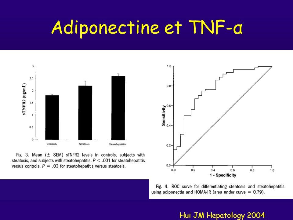 NAFLD: histologie, NASH score Kleiner Hepatology 2005 Stéatose nueBallonisation 1+ Ballonisation 2+