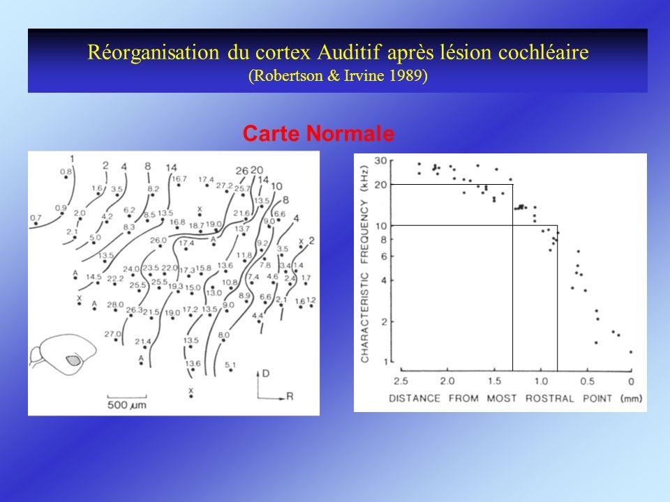 Réorganisation du cortex Auditif après lésion cochléaire (Robertson & Irvine 1989) Carte Normale