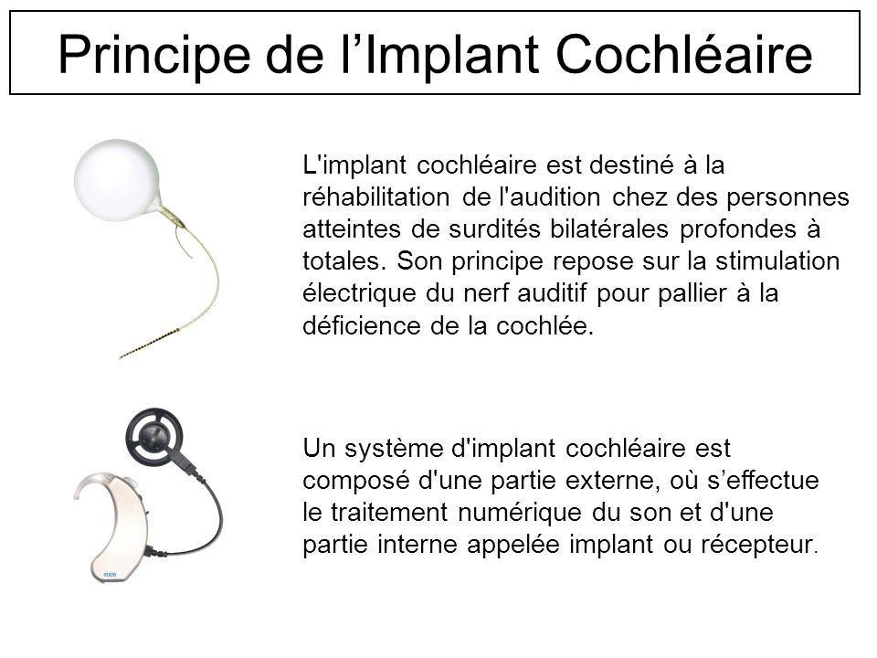 Reconstruction acoustique et méthode dévaluation de techniques de traitement de la parole pour implants cochléaires. G. Malherbe(1)(2); O. Meste(2); H