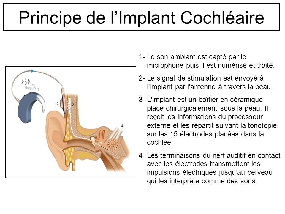 Principe de lImplant Cochléaire L'implant cochléaire est destiné à la réhabilitation de l'audition chez des personnes atteintes de surdités bilatérale
