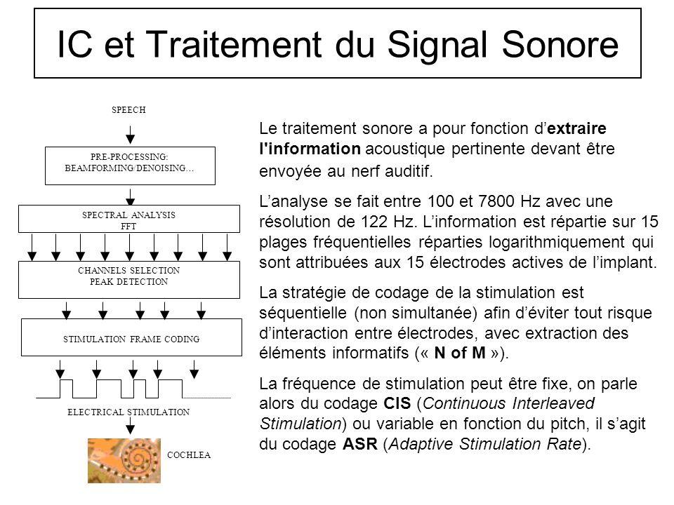 Principe de lImplant Cochléaire 1- Le son ambiant est capté par le microphone puis il est numérisé et traité. 2- Le signal de stimulation est envoyé à