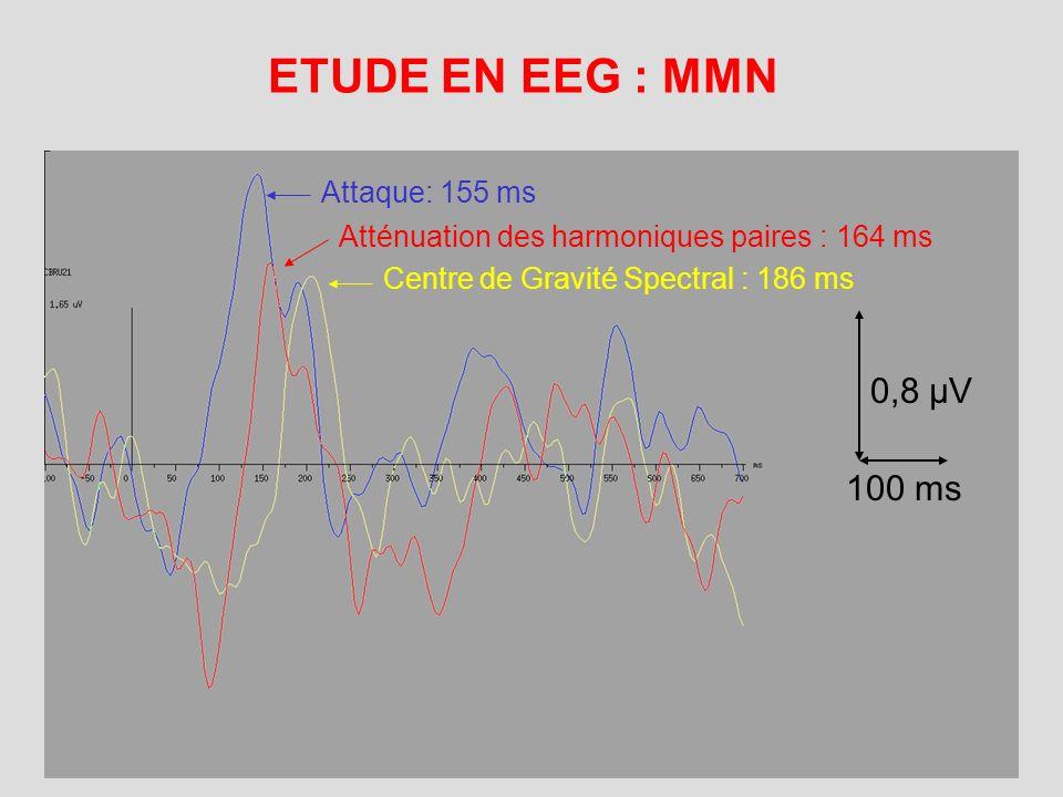 ETUDE EN IRMf Comparaison des régions activées par l'écoute de 2 timbres différents Comparaison à travers la diagonale du cube de stimuli :
