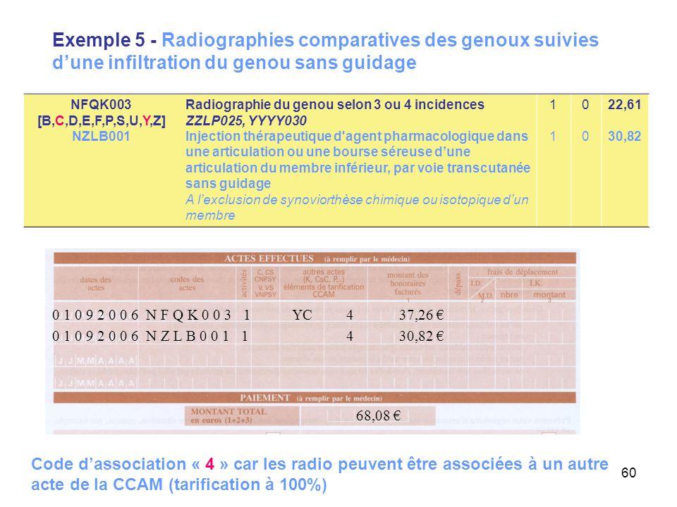 60 Exemple 5 - Radiographies comparatives des genoux suivies dune infiltration du genou sans guidage 0 1 0 9 2 0 0 6 N Z L B 0 0 1 1 4 30,82 68,08 0 1