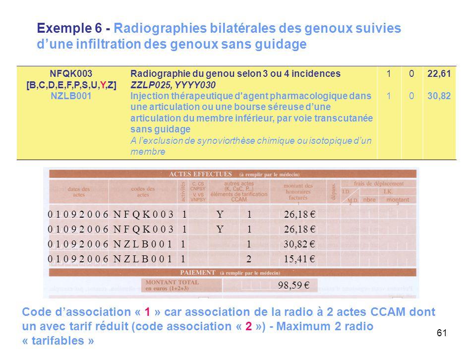61 Exemple 6 - Radiographies bilatérales des genoux suivies dune infiltration des genoux sans guidage 0 1 0 9 2 0 0 6 N Z L B 0 0 1 1 1 30,82 98,59 0