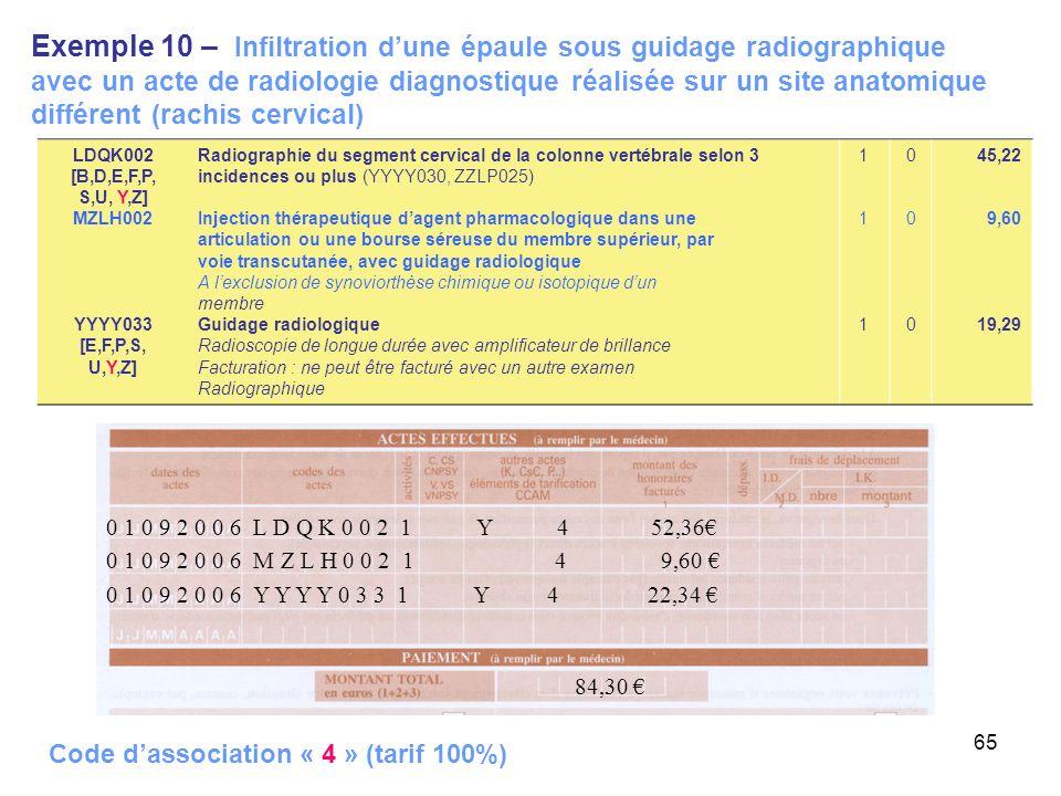 65 Exemple 10 – Infiltration dune épaule sous guidage radiographique avec un acte de radiologie diagnostique réalisée sur un site anatomique différent