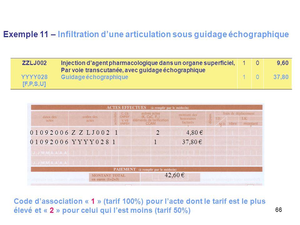 66 Exemple 11 – Infiltration dune articulation sous guidage échographique 0 1 0 9 2 0 0 6 Y Y Y Y 0 2 8 1 1 37,80 42,60 0 1 0 9 2 0 0 6 Z Z L J 0 0 2