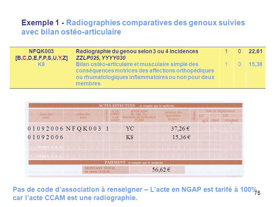 75 Exemple 1 - Radiographies comparatives des genoux suivies avec bilan ostéo-articulaire 0 1 0 9 2 0 0 6 K8 15,36 56,62 0 1 0 9 2 0 0 6 N F Q K 0 0 3