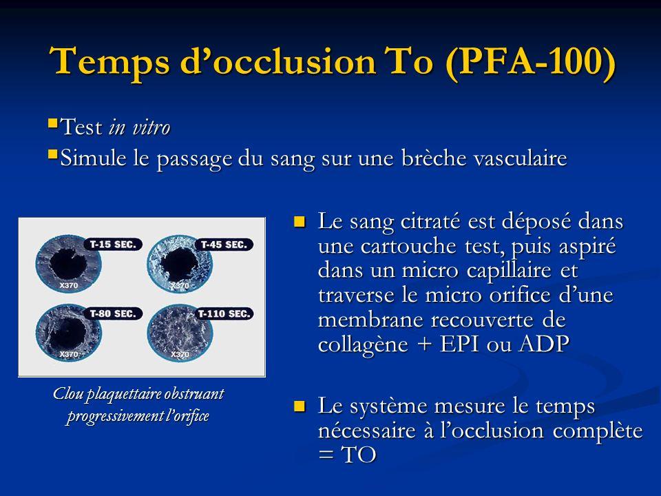 Temps docclusion To (PFA-100) Le sang citraté est déposé dans une cartouche test, puis aspiré dans un micro capillaire et traverse le micro orifice du