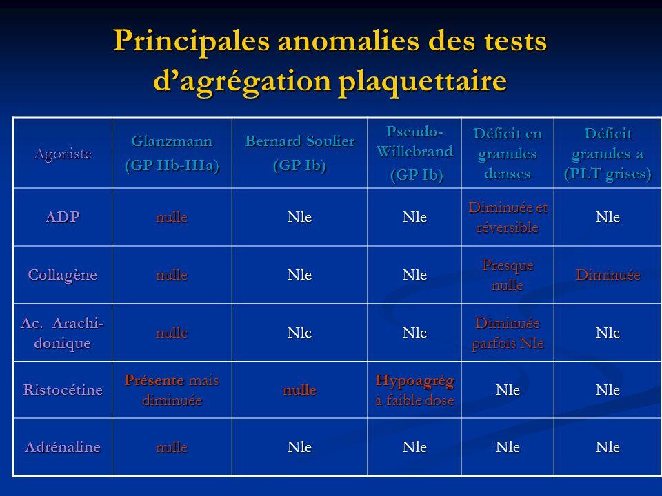 Principales anomalies des tests dagrégation plaquettaire AgonisteGlanzmann (GP IIb-IIIa) Bernard Soulier (GP Ib) Pseudo- Willebrand (GP Ib) (GP Ib) Dé