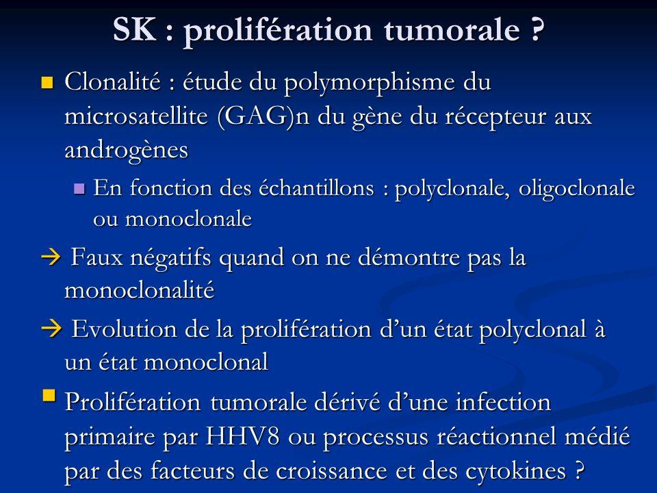 SK : prolifération tumorale ? Clonalité : étude du polymorphisme du microsatellite (GAG)n du gène du récepteur aux androgènes Clonalité : étude du pol