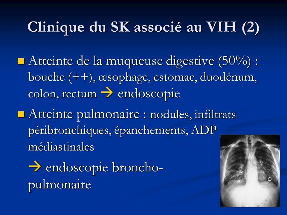 Clinique du SK associé au VIH (2) Atteinte de la muqueuse digestive (50%) : bouche (++), œsophage, estomac, duodénum, colon, rectum endoscopie Atteint