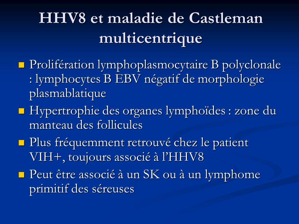 HHV8 et maladie de Castleman multicentrique Prolifération lymphoplasmocytaire B polyclonale : lymphocytes B EBV négatif de morphologie plasmablatique