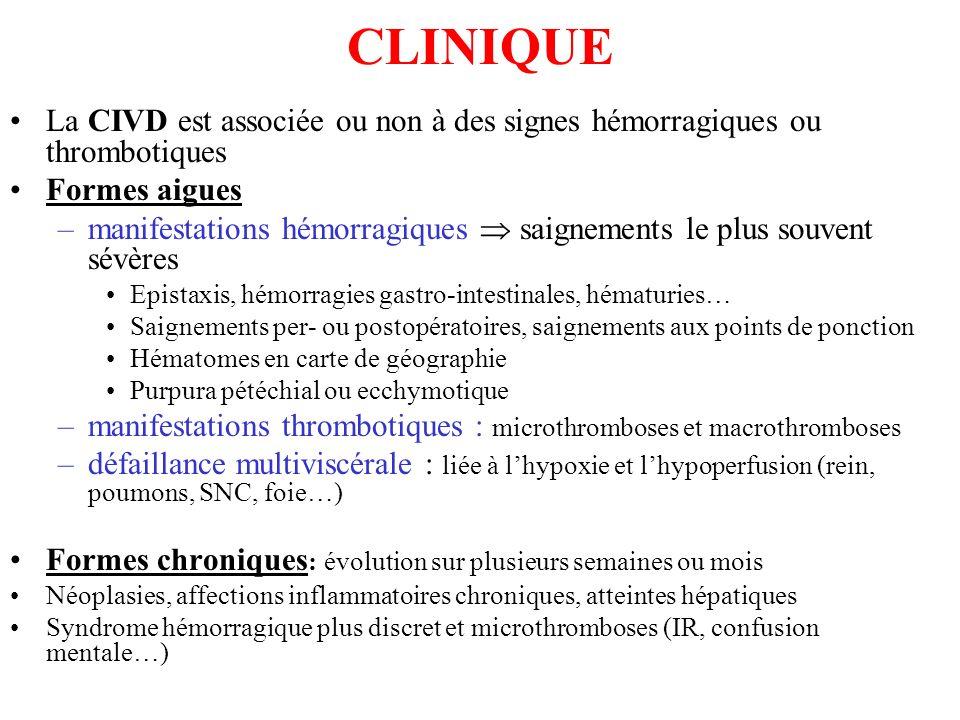 CLINIQUE La CIVD est associée ou non à des signes hémorragiques ou thrombotiques Formes aigues –manifestations hémorragiques saignements le plus souve
