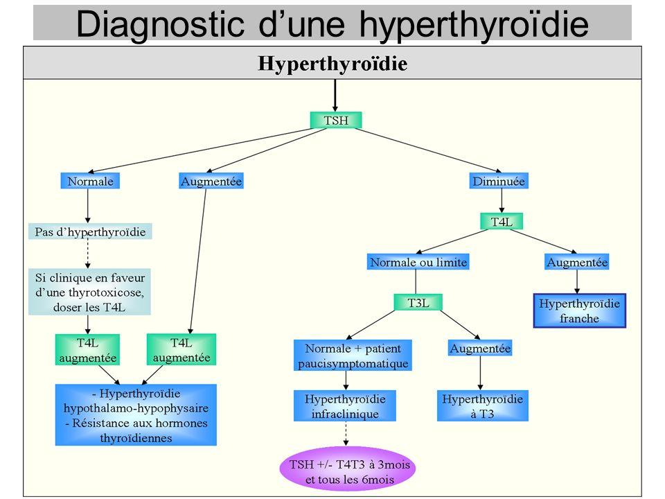 Diagnostic dune hyperthyroïdie