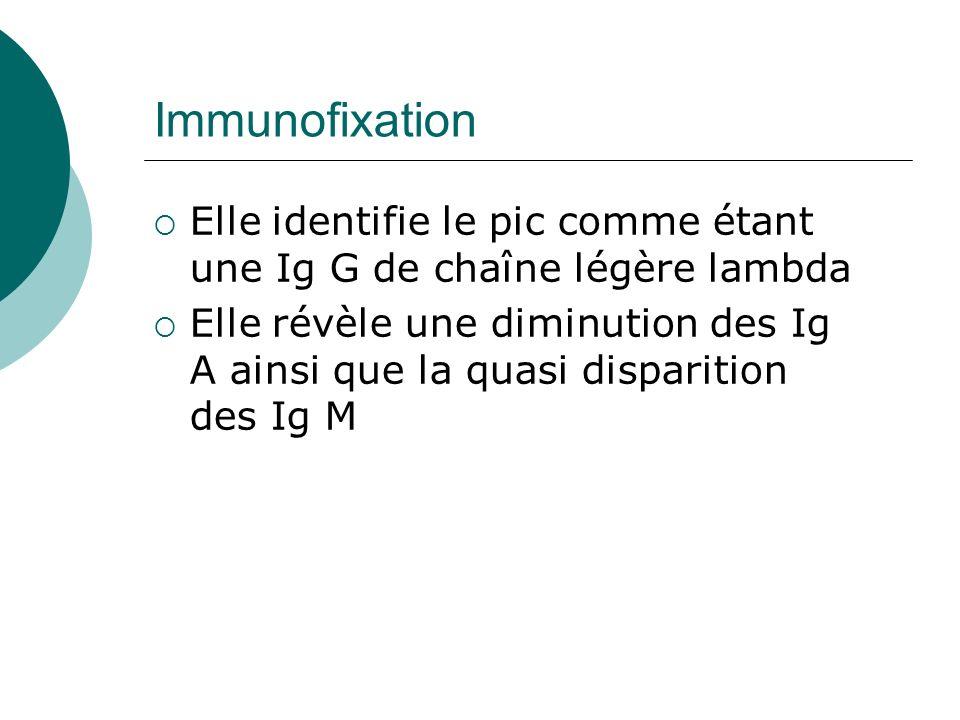 Immunofixation Elle identifie le pic comme étant une Ig G de chaîne légère lambda Elle révèle une diminution des Ig A ainsi que la quasi disparition d
