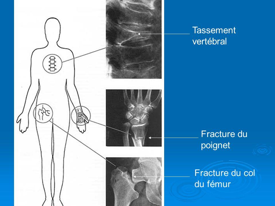 Tassement vertébral Fracture du poignet Fracture du col du fémur