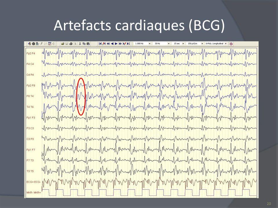 Artefacts cardiaques (BCG) 20