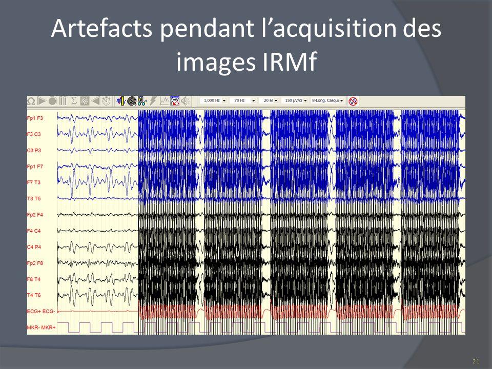 Artefacts pendant lacquisition des images IRMf 21