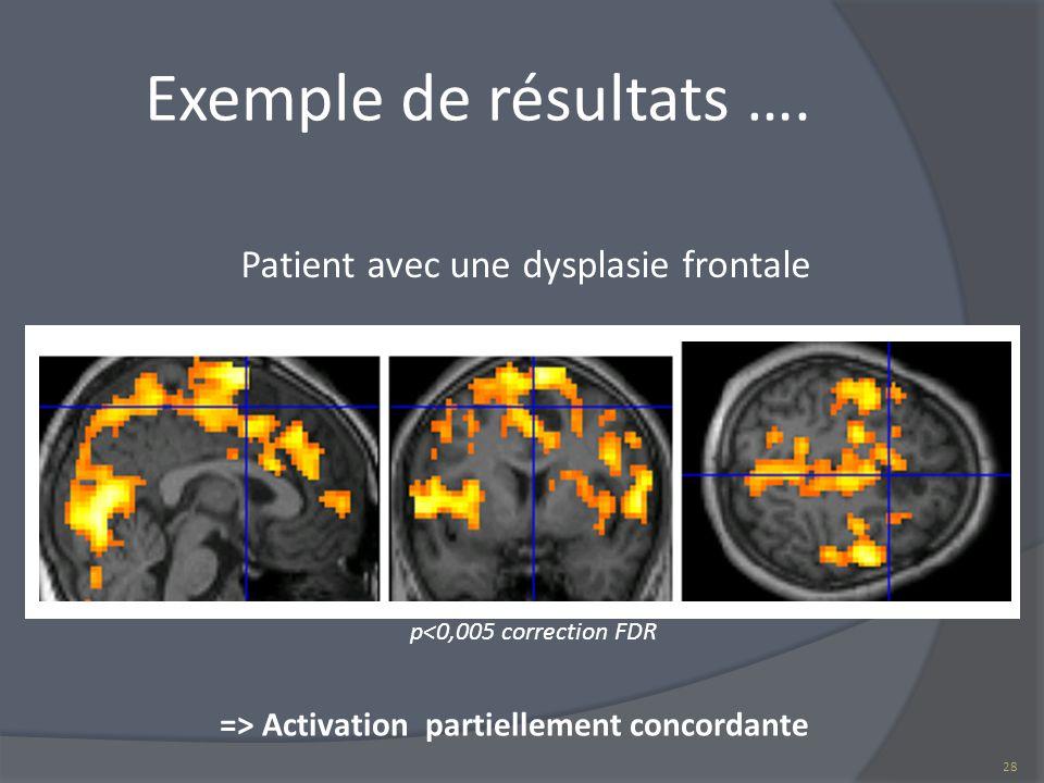 Exemple de résultats …. p<0,005 correction FDR Patient avec une dysplasie frontale => Activation partiellement concordante 28