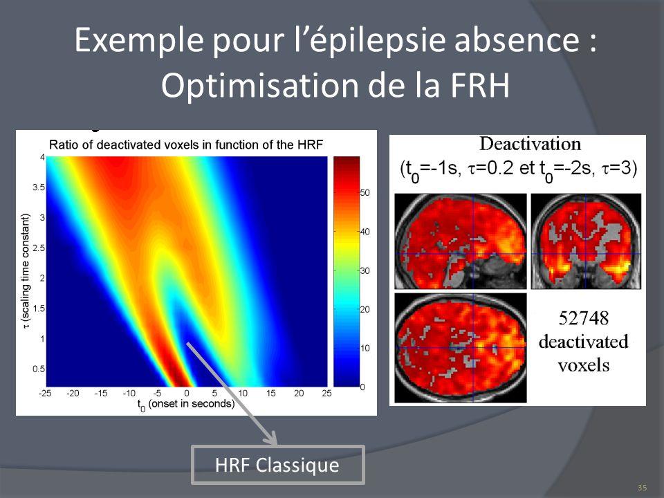 Exemple pour lépilepsie absence : Optimisation de la FRH HRF Classique 35