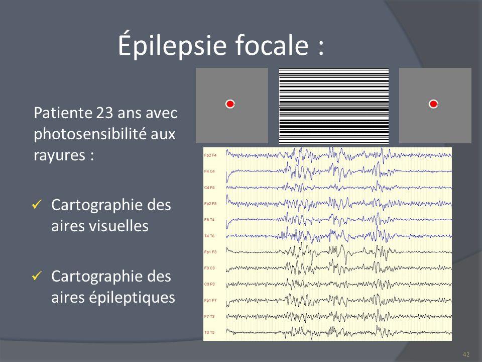 Épilepsie focale : Patiente 23 ans avec photosensibilité aux rayures : Cartographie des aires visuelles Cartographie des aires épileptiques 42