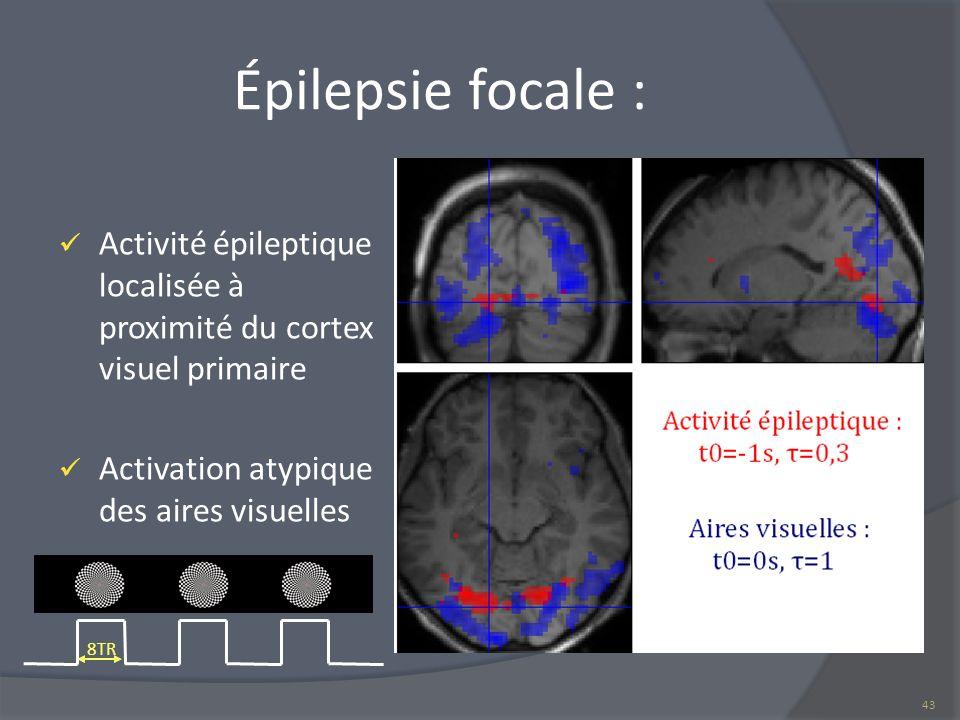 Épilepsie focale : Activité épileptique localisée à proximité du cortex visuel primaire Activation atypique des aires visuelles 43 8TR