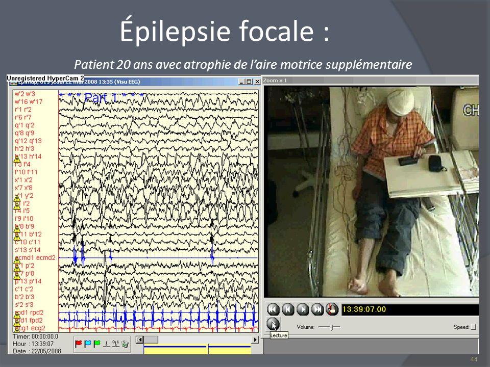 Épilepsie focale : Patient 20 ans avec atrophie de laire motrice supplémentaire 44