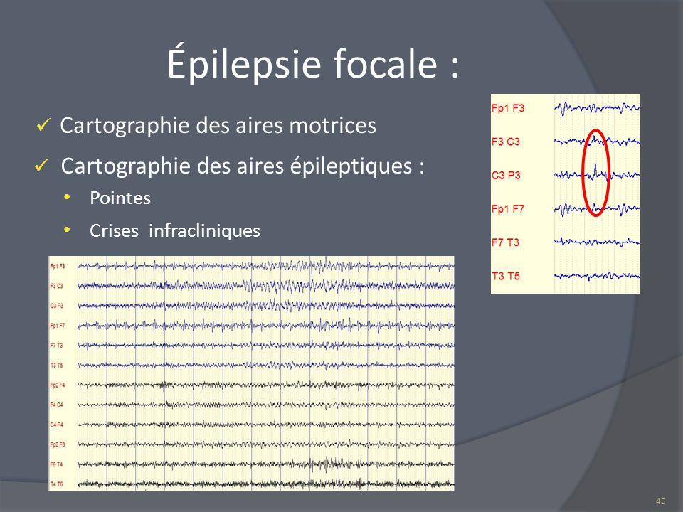 Épilepsie focale : Cartographie des aires motrices Cartographie des aires épileptiques : Pointes Crises infracliniques 45