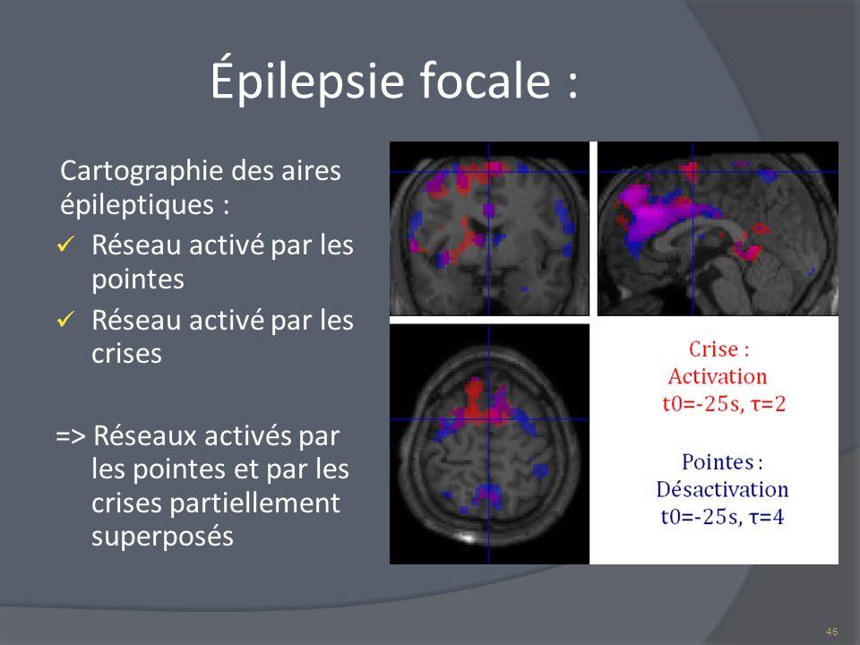 Épilepsie focale : Cartographie des aires épileptiques : Réseau activé par les pointes Réseau activé par les crises => Réseaux activés par les pointes