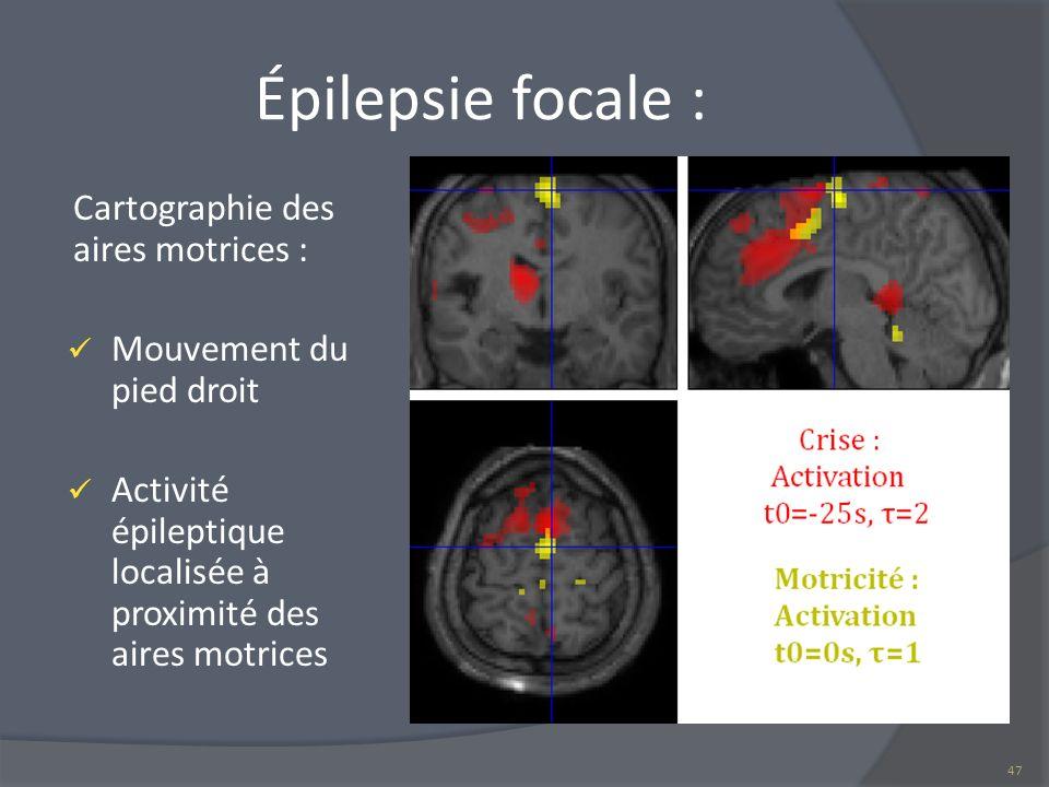 Épilepsie focale : Cartographie des aires motrices : Mouvement du pied droit Activité épileptique localisée à proximité des aires motrices 47