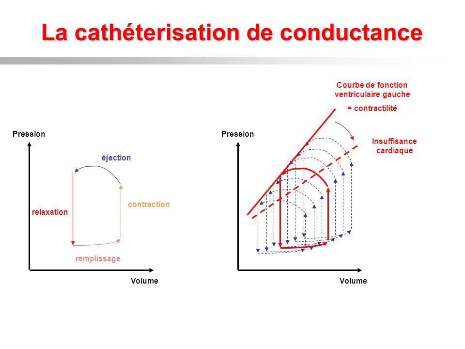 La cathéterisation de conductance Volume Pression remplissage contraction éjection relaxation Volume Pression Courbe de fonction ventriculaire gauche