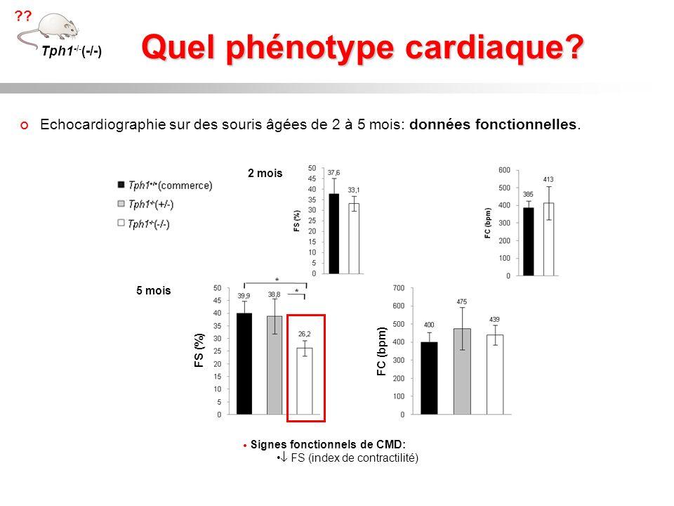 Quel phénotype cardiaque? Echocardiographie sur des souris âgées de 2 à 5 mois: données fonctionnelles. Signes fonctionnels de CMD: FS (index de contr