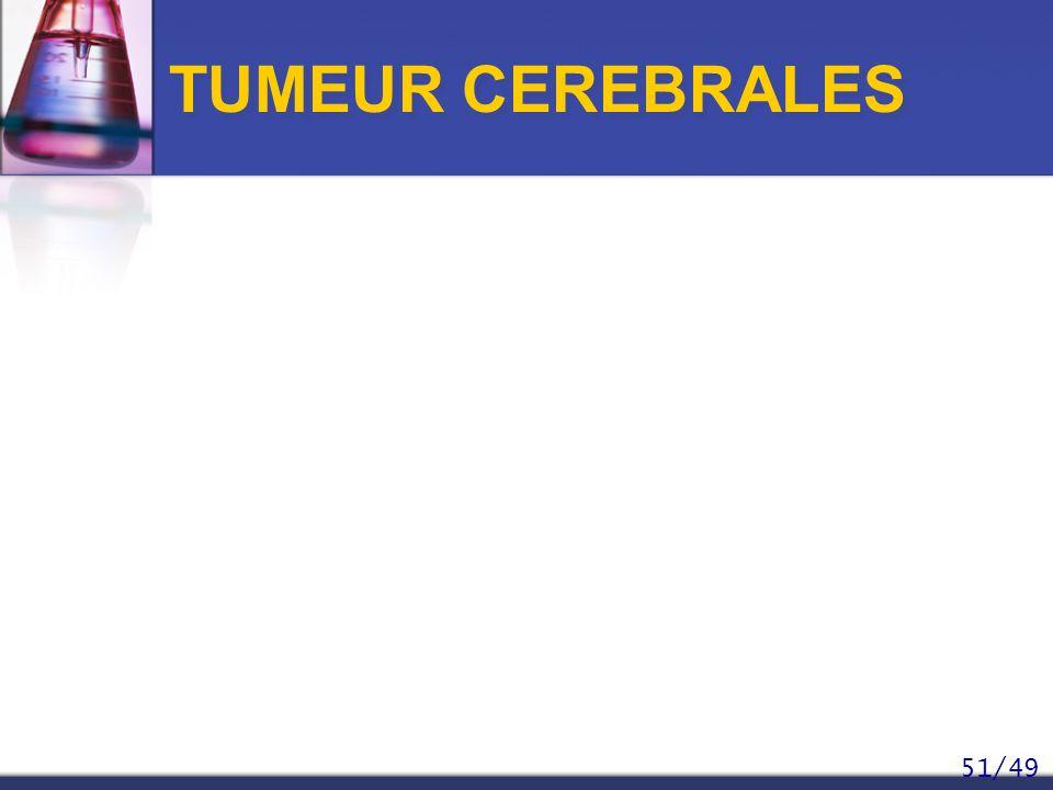 51/49 TUMEUR CEREBRALES