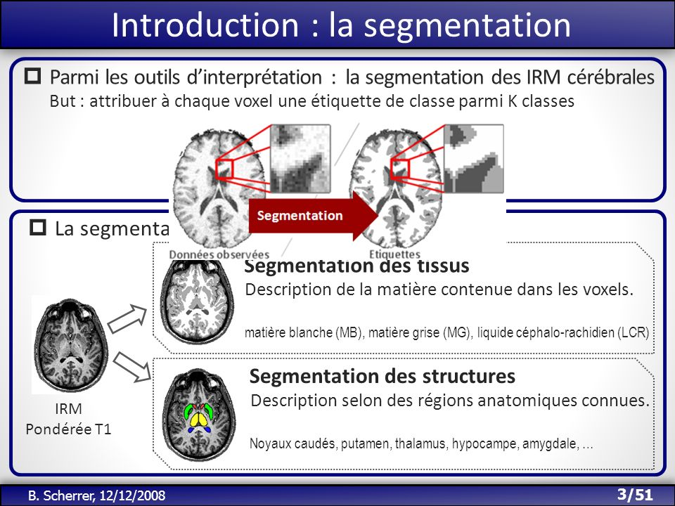 /51 Introduction : la segmentation Parmi les outils dinterprétation : la segmentation des IRM cérébrales But : attribuer à chaque voxel une étiquette