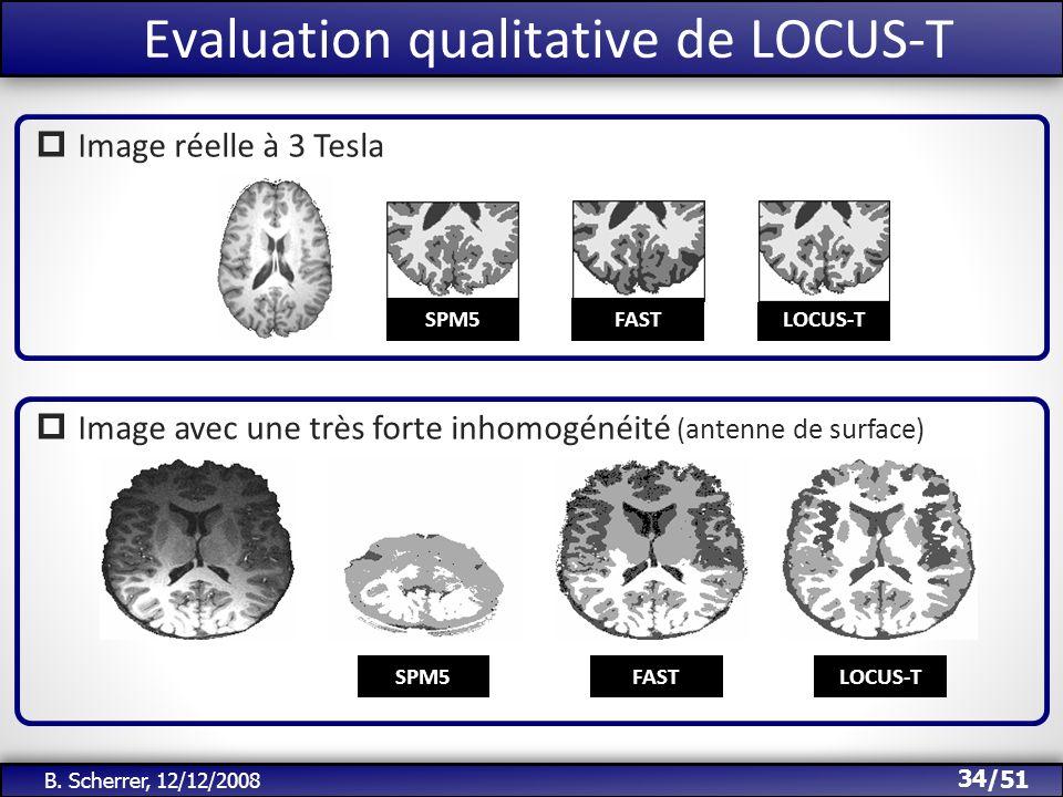 /51 Evaluation qualitative de LOCUS-T 34 B. Scherrer, 12/12/2008 Image réelle à 3 Tesla LOCUS-TSPM5FAST Image avec une très forte inhomogénéité (anten