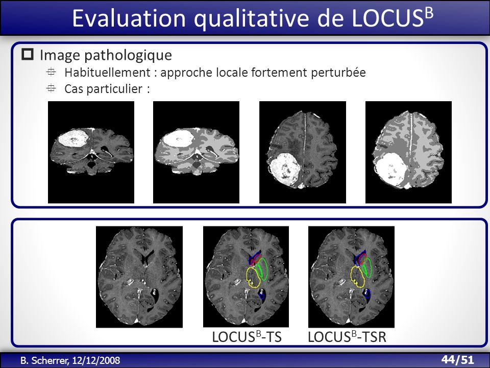 /51 Evaluation qualitative de LOCUS B 44 B. Scherrer, 12/12/2008 LOCUS B -TSLOCUS B -TSR Image pathologique Habituellement : approche locale fortement