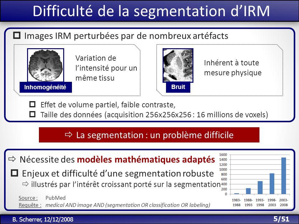 /51 Introduction : la segmentation des IRM IRM Pondérée T1 Segmentation des tissus Description de la matière contenue dans les voxels.
