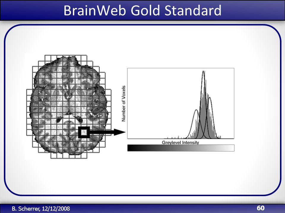 /51 BrainWeb Gold Standard 60 B. Scherrer, 12/12/2008
