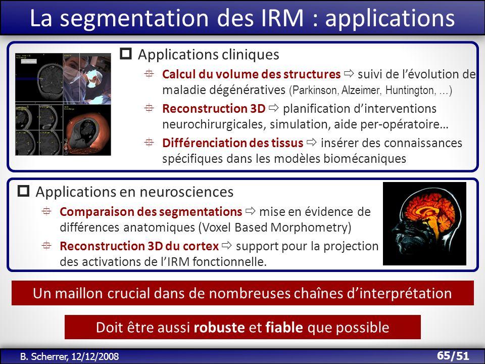 /51 Un maillon crucial dans de nombreuses chaînes dinterprétation 65 B. Scherrer, 12/12/2008 La segmentation des IRM : applications Applications clini