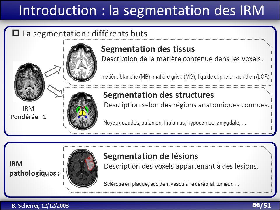/51 Introduction : la segmentation des IRM IRM Pondérée T1 Segmentation des tissus Description de la matière contenue dans les voxels. matière blanche