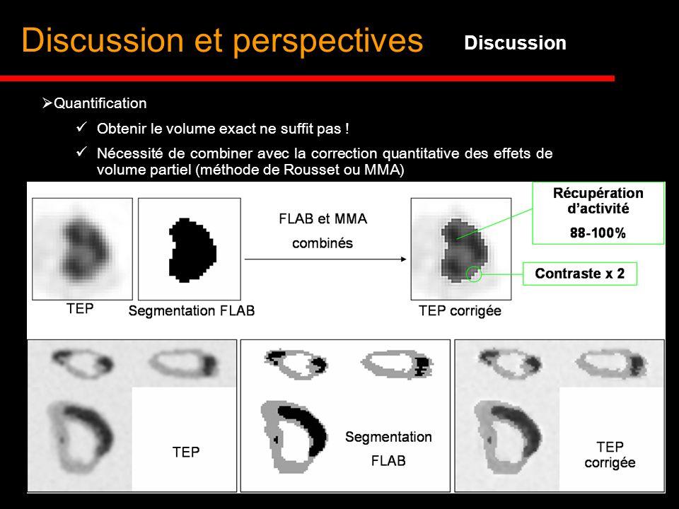 Discussion et perspectives Discussion Nécessité de combiner avec la correction quantitative des effets de volume partiel (méthode de Rousset ou MMA) Q